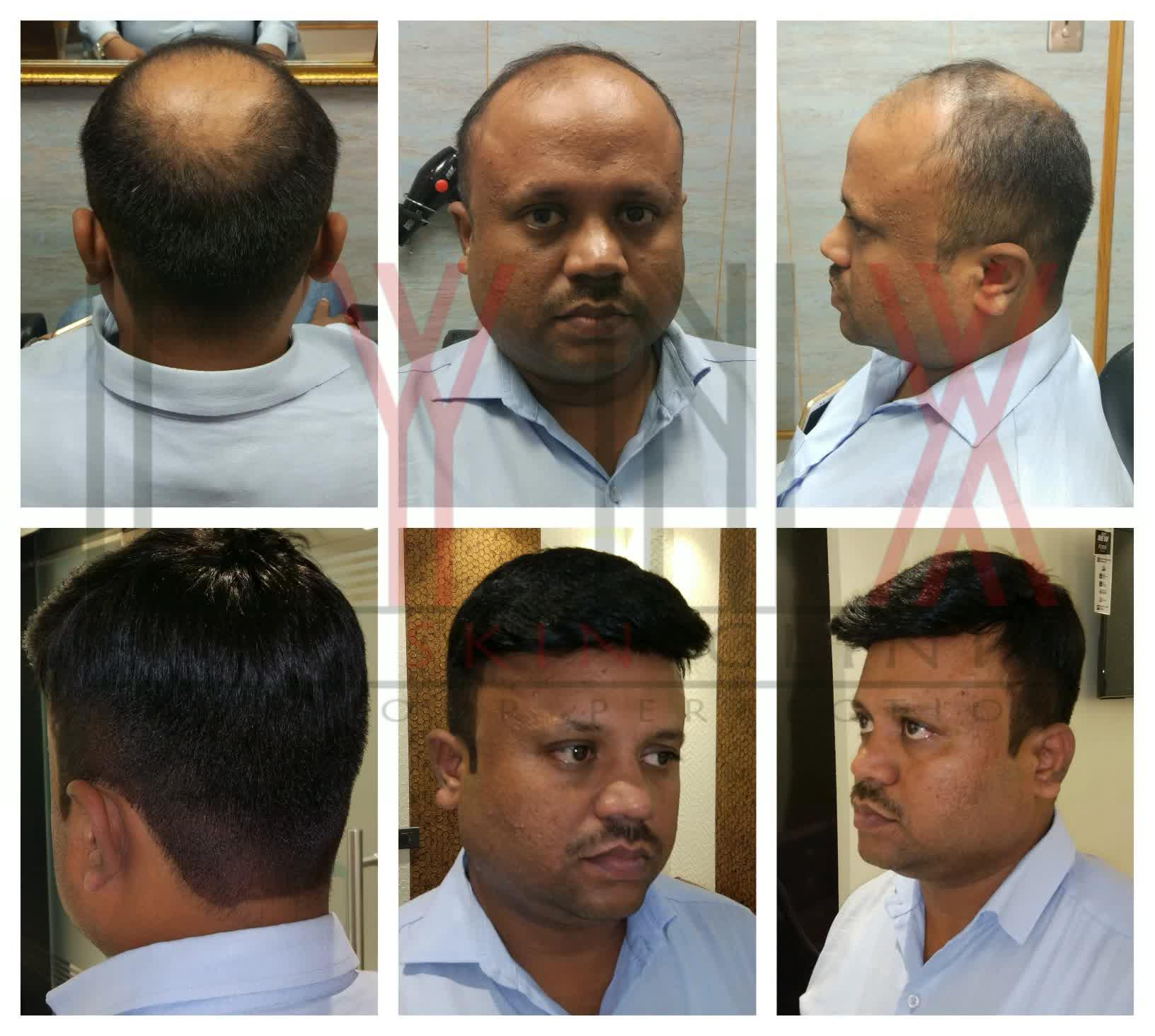 Hair Weaving in Gurgaon, Hair Weaving in Delhi, Hair Weaving in Jaipur, Best Weaving Hair in Gurgaon, Best Hair Weaving in Delhi, Best Hair Weaving in Jaipur, Non Surgical Hair Replacement in Gurgaon, Non Surgical Hair Replacement in Delhi, Non Surgical Hair Replacement in Jaipur