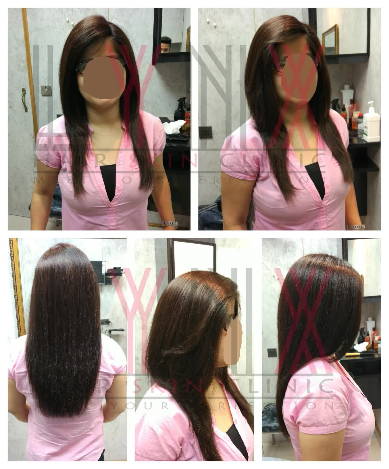 Ladies Hair Wigs in Gurgaon