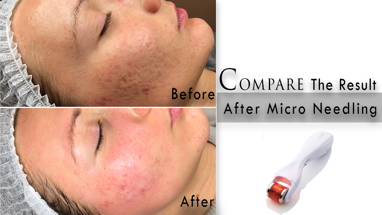 micro needling in Gurgaon, micro needling benefits in Gurgaon, micro needling before and after in Gurgaon, microneedling before and after wrinkles in Gurgaon, micro needling side effects in Gurgaon, microneedling near me, microneedling near me, microneedling cost near me, microneedling with prp cost in Gurgaon, microneedling with prp for acne scars in Gurgaon, microneedling without prp in Gurgaon, microneedling with prp under eyes in Gurgaon, micro needling in Gurgaon, micro needling results how long, micro needling near me, micro needling pen, does microneedling hurt, microneedling definition, benefits of microneedling at homem micro needling at home, micro needling after one treatment, microneedling benefits for acne, microneedling for acne, micro needling cost in india, dermapen treatment cost in delhi, skin peeling after microneedling, skin peeling after dermaroller, itchy skin after microneedling, microneedling before and after one treatment in Gurgaon