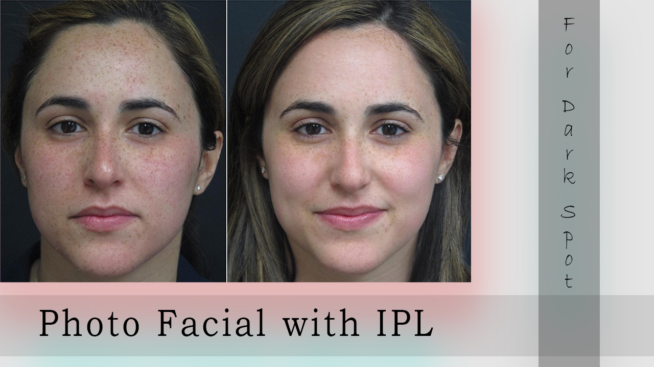 photo facial before and after in Gurgaon, IPL before and after 1 treatment in Gurgaon, what to expect after IPL photofacial in Gurgaon, IPL before and after photos in Gurgaon, IPL skin rejuvenation before and after in Gurgaon, IPL treatment side effects in Gurgaon, best moisturizer after IPL in Gurgaon, IPL photo facial day by day in Gurgaon, how many ipl treatments to see results in Gurgaon, photo facial cost in india, IPL photo facial recovery in Gurgaon, IPL photo facial benefits, what to expect after ipl photo facial in Gurgaon, IPL photo facial near me, ipl photo facial day by day, photo facial cost near me, photo facial aftercare, ipl photo facial in gurgaon, photo facial cost in gurgaon, photo facial cost in india, photo facial benefits in Gurgaon, photo facial price in Gurgaon