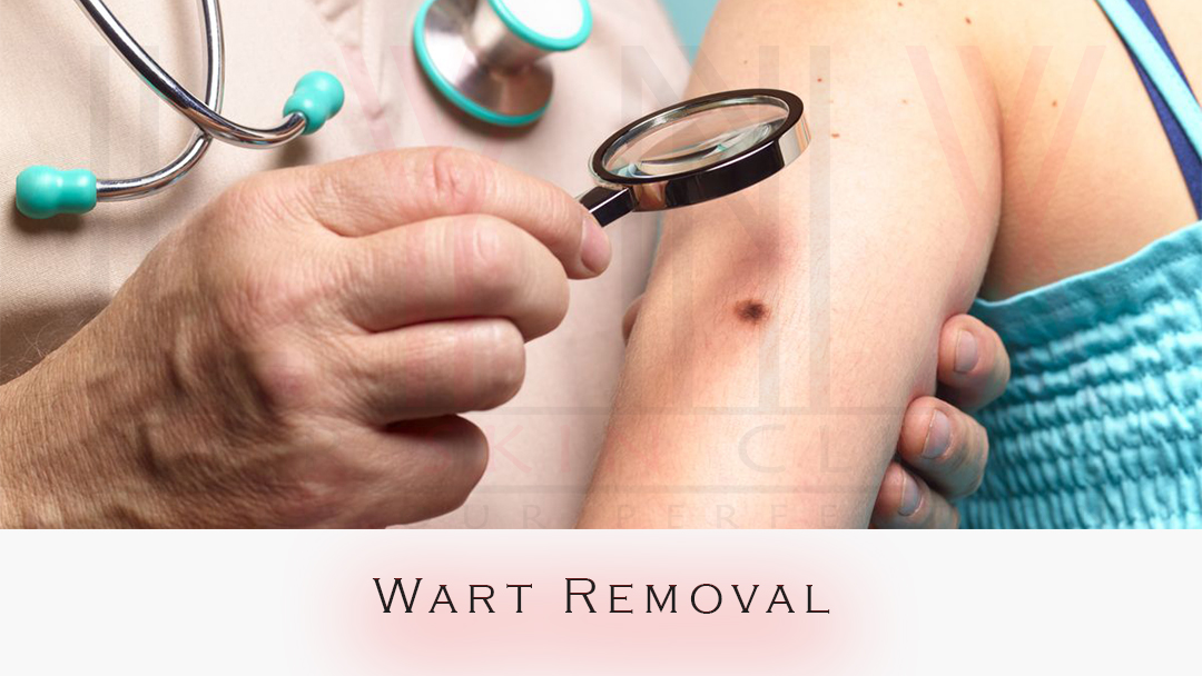 mole removal in Gurgaon, free mole removal in Gurgaon, mole removal on head in Gurgaon, getting a mole removed in Gurgaon, cheap mole removal in Gurgaon, removal of moles on face by laser in Gurgaon, small mole removal cost in Gurgaon, face mole removal surgery in Gurgaon, laser wart removal cost in Gurgaon, laser wart removal cost in Rewari, wart removal doctor near me, skin clinic in gurgaon, wart removal surgery cost in Bhiwadi, warts doctor specialist in Gurgaon, laser treatment for warts on face in Gurgaon, does wart removal leave scars in Gurgaon