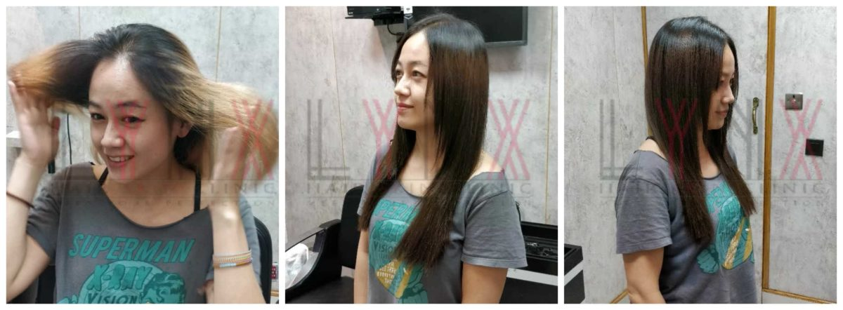 Micro-Ring Hair Extensions in Gurgaon-