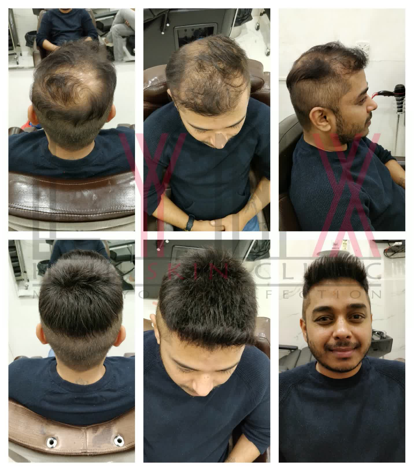 Non-surgical hair replacement in gurgaon