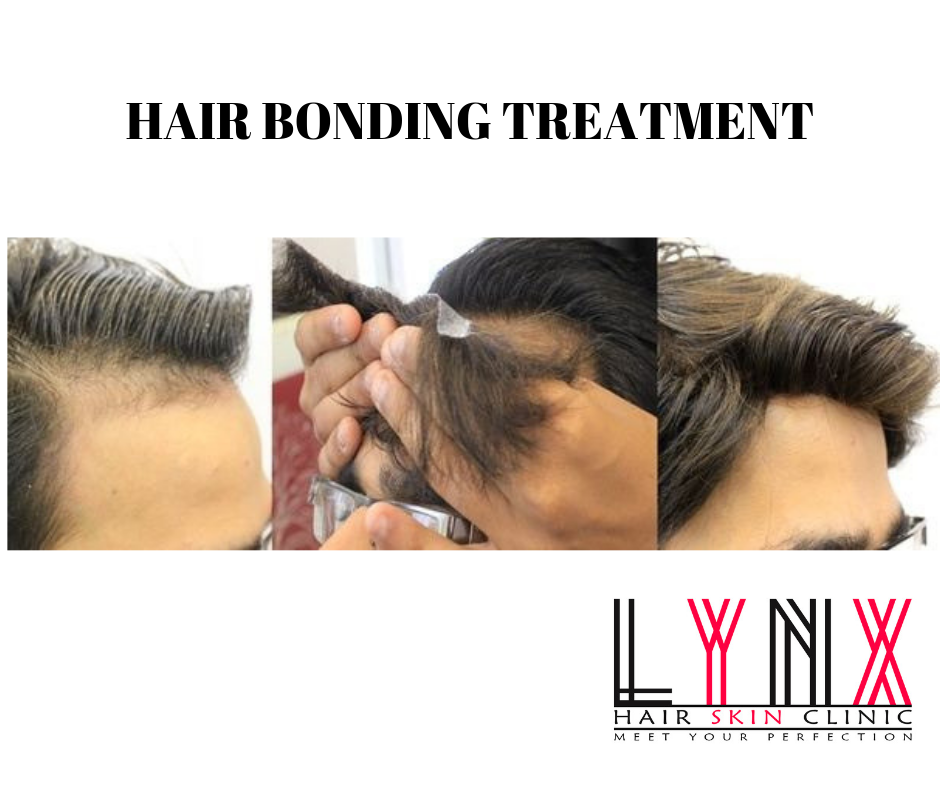 Hair Bonding before and after