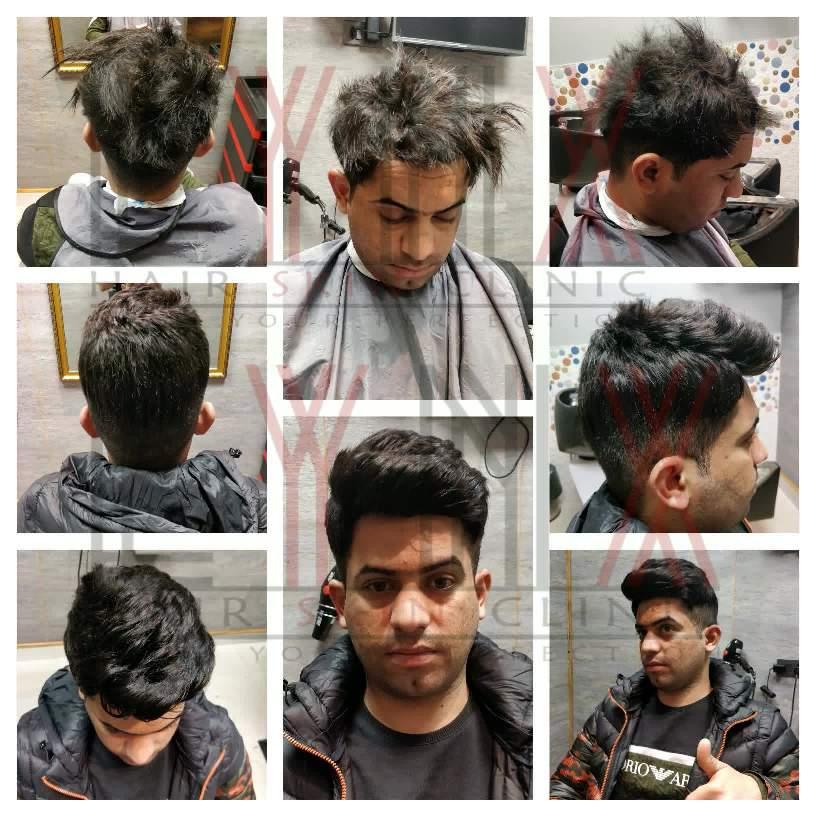 Ladies Hair Weaving Gurgaon