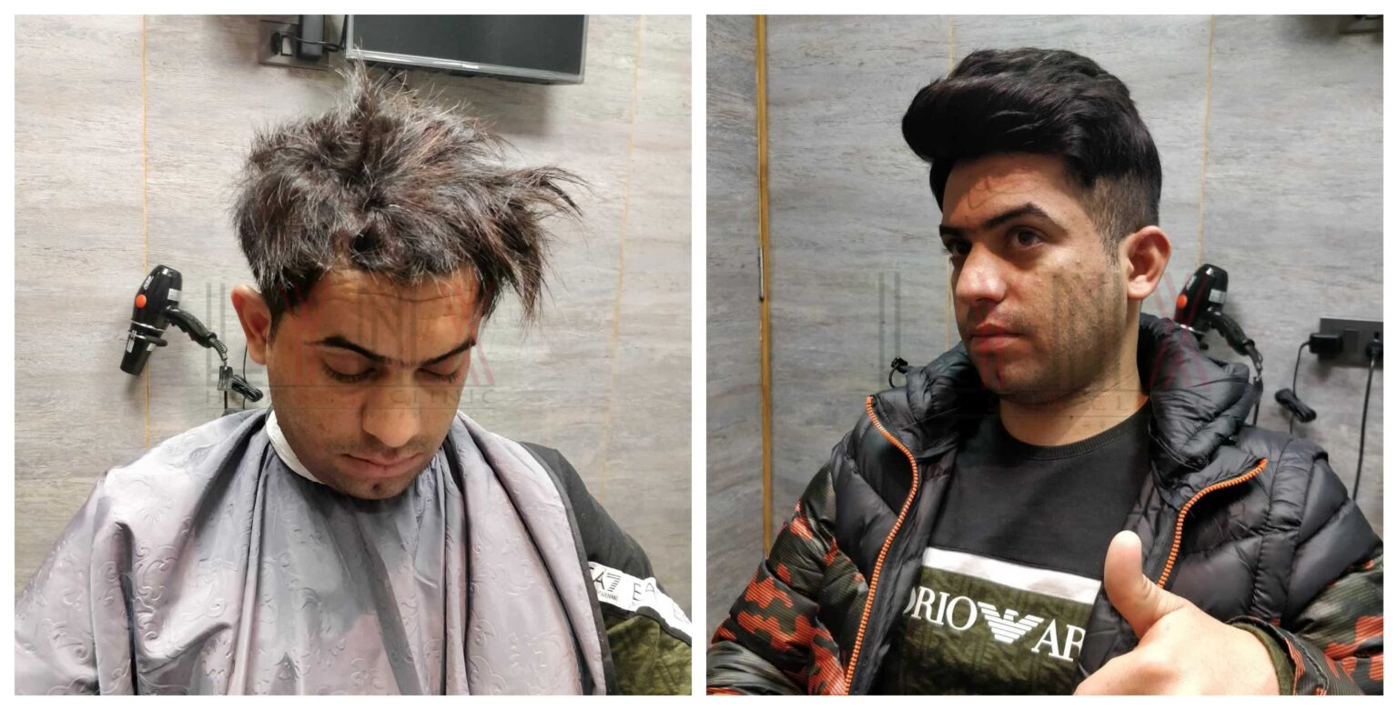 Hair replacement in hyderabad